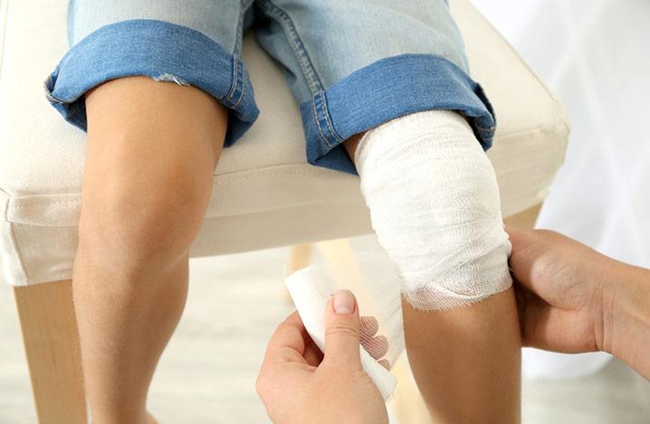 Frau wickelt Wundverband um das Knie eines kleinen Jungen, Nahaufnahme